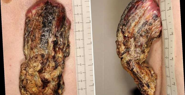 Man Left With Five Inch Dragon Horn After Ignoring Signs Of Skin Cancer For Three Years The Sun Fashionbehindthescene